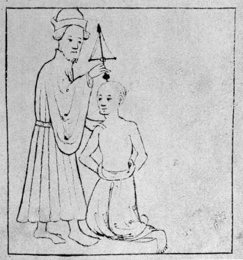13th_century_trepanation._Wellcome_M0010165